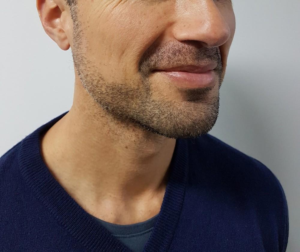Barbers-Best-Beard-Trimmer