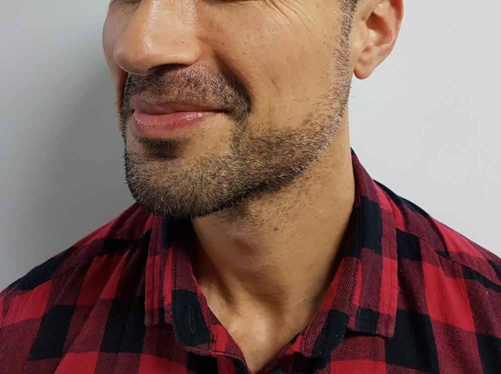 Remington-Barbers-Best-Beard-Trimmer